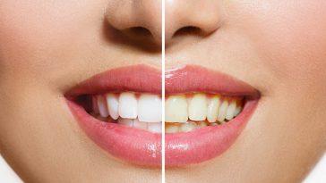 Cara Mengatasi Gigi Kuning Secara Alami